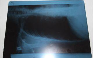 Переработка и утилизация рентгеновской пленки